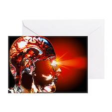 Human brain - Greeting Cards (Pk of 10)