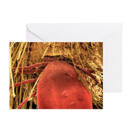 Hedgehog tick, SEM - Greeting Cards (Pk of 10)