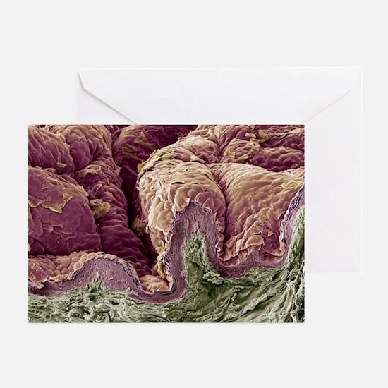 Skin tissue, SEM - Greeting Cards (Pk of 10)