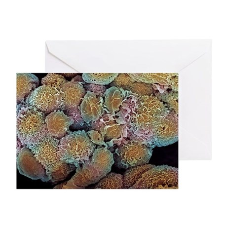 Breast cancer cells, SEM - Greeting Cards (Pk of 1