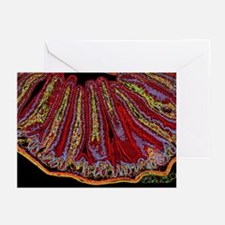Small intestine villi, section - Greeting Cards (P