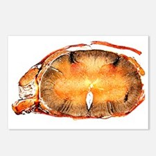 Spinal cord, transverse section - Postcards (Pk of
