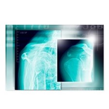 Fractured shoulder, X-rays - Postcards (Pk of 8)