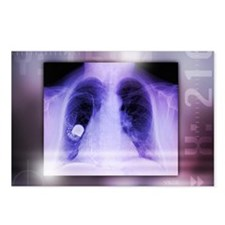 Heart pacemaker, X-ray - Postcards (Pk of 8)