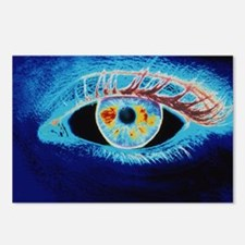 Computer graphic of a human eye (negative-image) -