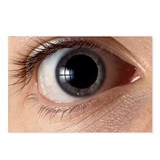 Front view of human eye with dilated pupil - Postc