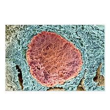 Ovarian follicle, SEM - Postcards (Pk of 8)