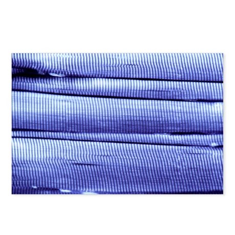 Skeletal muscle fibres, light micrograph - Postcar