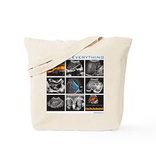 General ultrasound images Tote Bag
