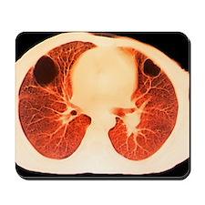 Lung abscess, CT scan - Mousepad