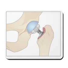 Hip replacement, artwork - Mousepad