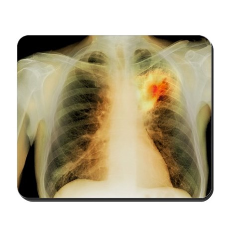 Lung abscess, X-ray - Mousepad