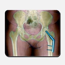 Fractured femur - Mousepad