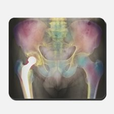 Hip replacement, X-ray - Mousepad