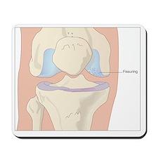 Osteoarthritic knee, artwork - Mousepad
