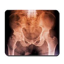 Osteoarthritis of the hip, X-ray - Mousepad