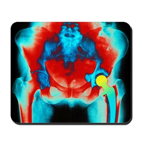 Coloured X-ray of an artificial hip joint - Mousep