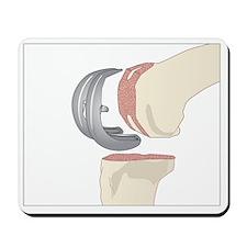 Knee replacement, artwork - Mousepad
