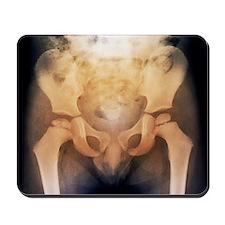 Growth disorder of thigh bone, X-ray - Mousepad