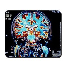 Coloured MRI scans of the brain, coronal view - Mo