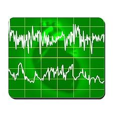 Irregular heartbeat - Mousepad