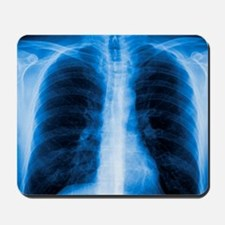 Normal chest X-ray - Mousepad