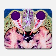 Vision and the brain, MRI scan - Mousepad