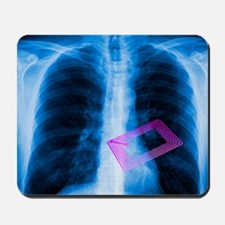 Security chip in a human chest - Mousepad