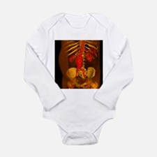 Aortic aneurysm, 3-D CT scan - Long Sleeve Infant