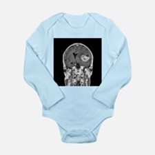 Brain cancer, MRI scan - Long Sleeve Infant Bodysu