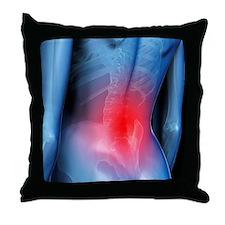 Lower back pain, conceptual artwork - Throw Pillow
