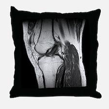 Anterior cruciate ligament tear, CT scan - Throw P