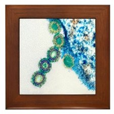 H1N1 swine flu virus, TEM - Framed Tile