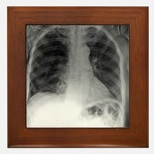 Tension pneumothorax, X-ray - Framed Tile