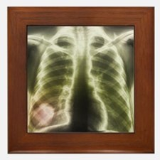 Pulmonary tapeworm cysts, X-ray - Framed Tile