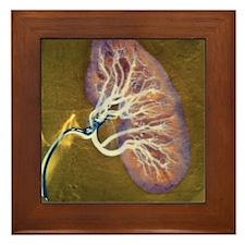 Kidney blood supply - Framed Tile