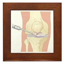Torn cruciate ligament, artwork - Framed Tile
