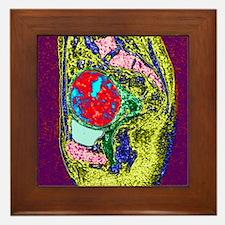 Uterine fibroid, MRI scan - Framed Tile