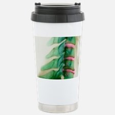 Bony spurs in neck, X-ray - Travel Mug