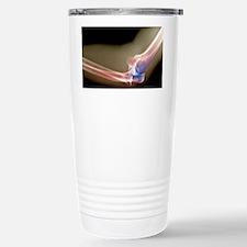 Dislocated elbow, X-ray - Travel Mug