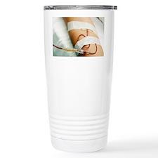 Blood transfusion - Travel Mug