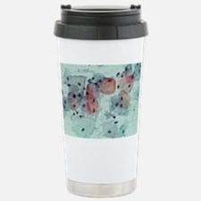 Cervical smear containing bacteria - Travel Mug