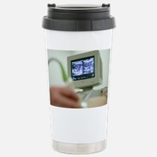 Pregnancy ultrasound - Stainless Steel Travel Mug