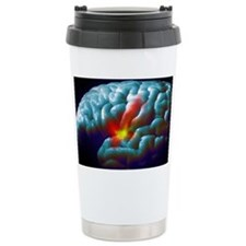 Parkinson's disease - Travel Mug