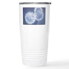 LM of hatching blastocyst in IVF - Travel Mug