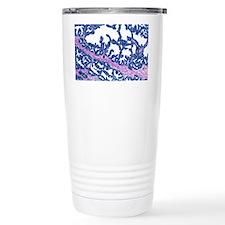 Prostate gland, light micrograph - Travel Mug
