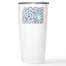Buttercup stem, light micrograph - Travel Mug