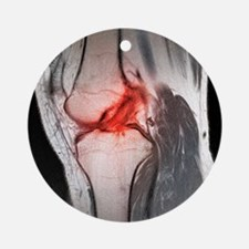 Anterior cruciate ligament tear, CT scan - Round O