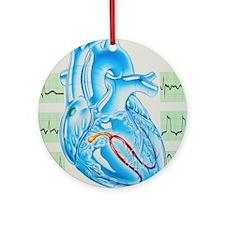 Artwork of cardiac arrhythmia with heart - Round O