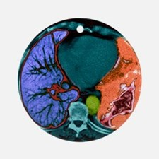 Lung cancer, CT scan - Round Ornament